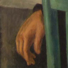 Painting Of a Hand Before Treatment